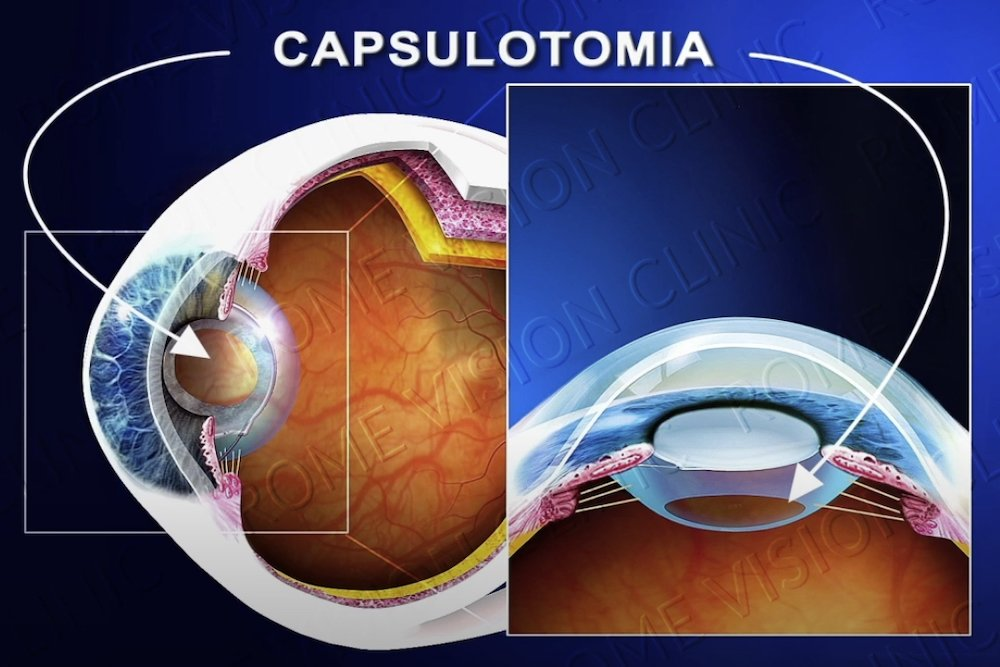 Cataratta secondaria capsulotomia laser YAG