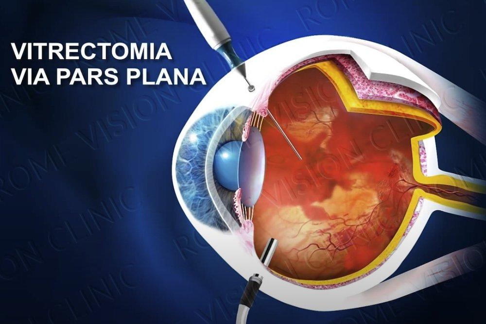 Occlusione vena centrale