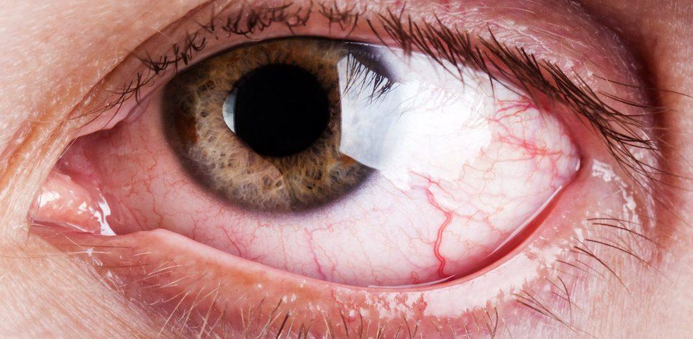occhio secco prevenzione