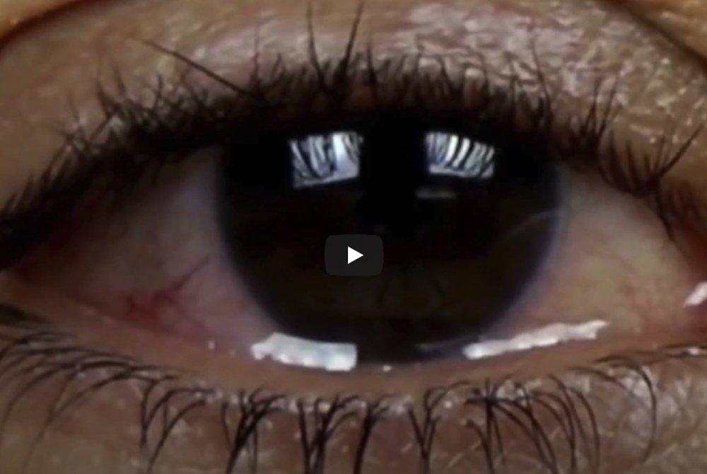 Cos'è la chirurgia refrattiva oculare